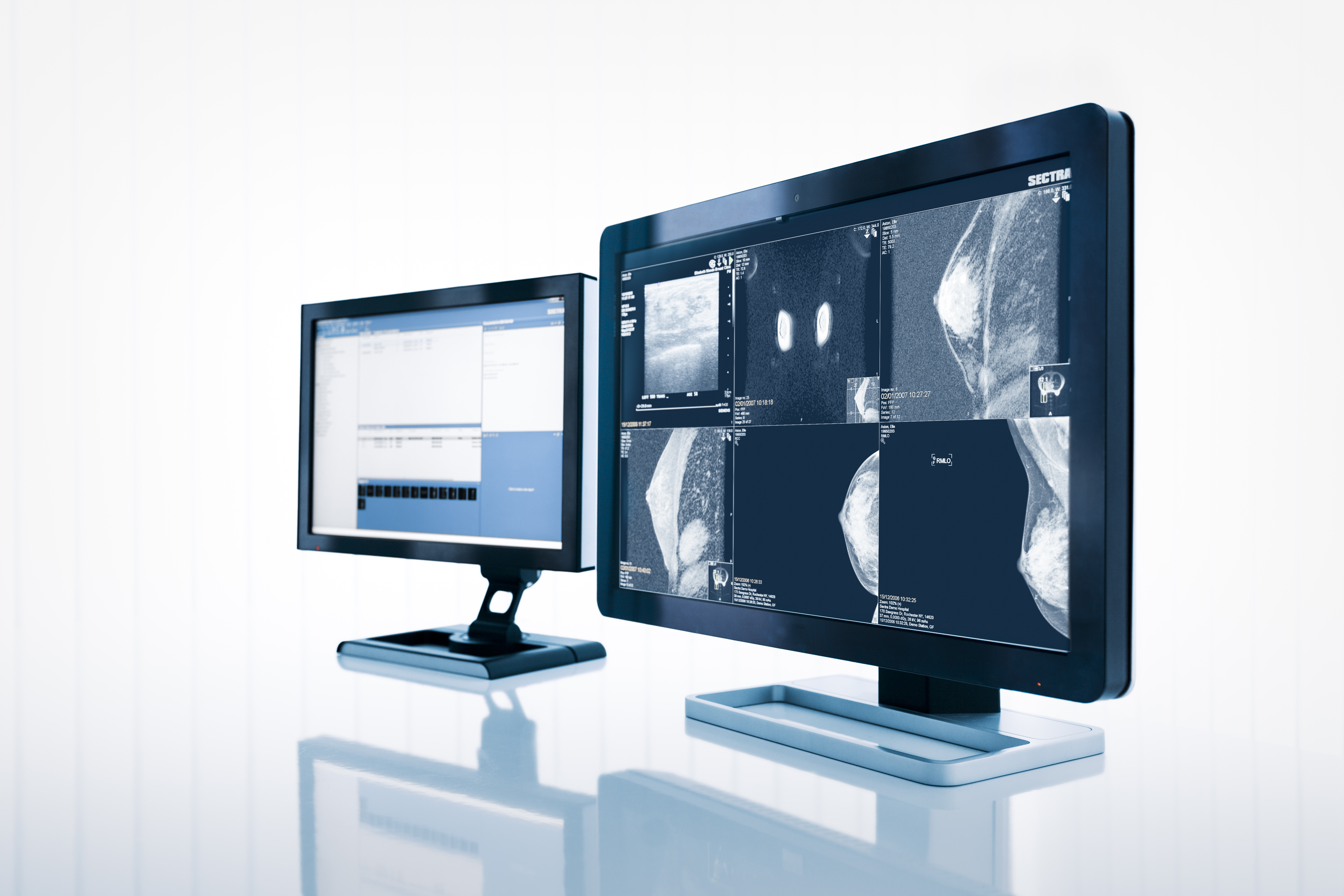 sectra breast tomosynthesis Breast dosimetry in digital mammography and tomosynthesis david r dance nccpm, royal surrey county hospital united kingdom outline  sectra overall variation of  what is the dose for breast tomosynthesis 1 the value of t is close to 1 2.