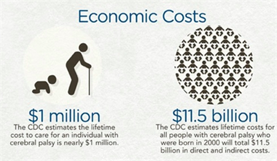 Economic Costs