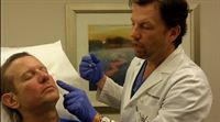 Dr Robert Sigal gets facial filler injections by Dr Byron Poindexter