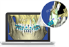SureSmile 3-D orthodontic planning software with cutaway of root location in bone