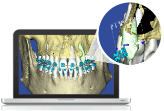 Digital 3D Orthodontic Model Bone