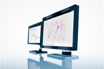 Sectra får order när vårdgivare i Texas digitaliserar patologin – vill ge fler patienter vård i världsklass
