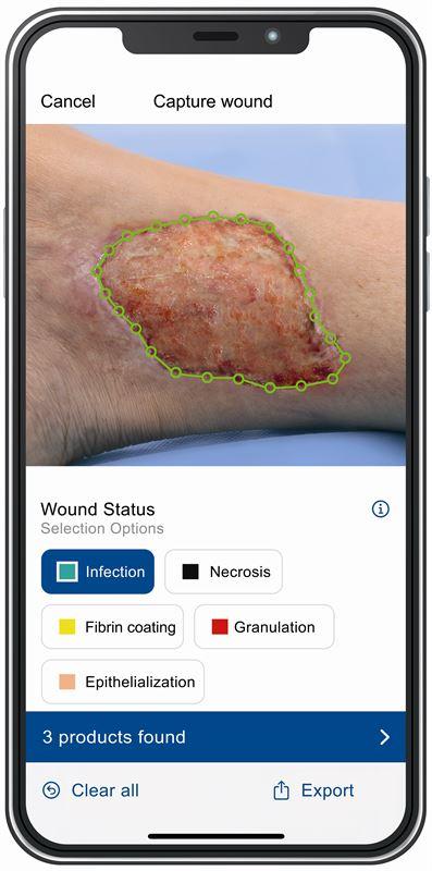 Cutimed Wound Navigator App