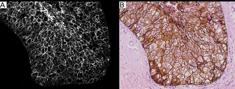 Figur 1. Jämförelse mellan Lumitos UCNP-infärgning och standard immunohistokemisk DAB-infärgning.  I bild A är bröstvävnad infärgad med Her2-UCNP-reagens för att visualisera celler med förekomst av Her2, en vanlig markör vid diagnos av bröstcancer.          Bild B visar infärgning i samma vävnadsprov som i bild A, men med standard DAB-infärgning. Både bild A och bild B visar jämförbar detaljeringsnivå men både bakgrundssignal och autofluorescens är eliminerade i Lumitos UCNP-baserade infärgning. Eliminering av all oväsentlig information från bakgrundssignal och autofluorescens ger väsentligt bättre förutsättningar för automatiserad analys baserat på t ex AI-algoritmer.