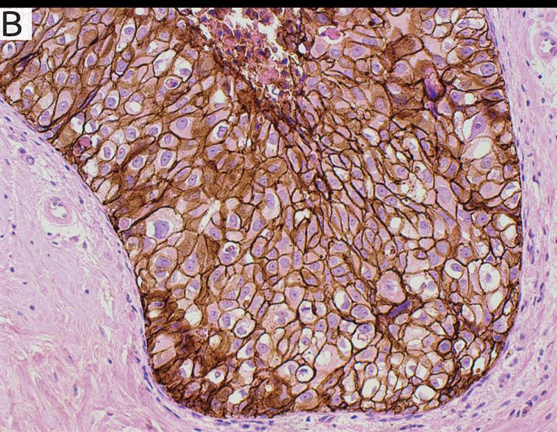 Bild B visar infärgning i samma vävnadsprov som i bild A, men med standard DAB-infärgning.