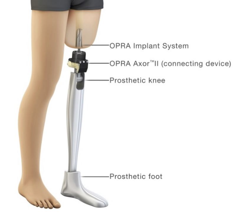 The OPRA Implant System consists of an anchorage element fixture and a skin penetrating device abutment The prosthetic leg is then attached directly to the abutment via the OPRAT AXOR a prosthetic connection and safety device