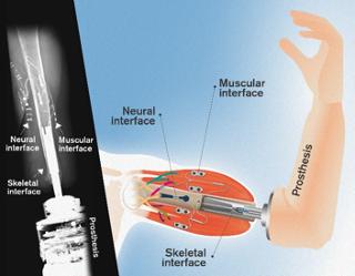 e-OPRA neuromusculoskeletal prosthesis