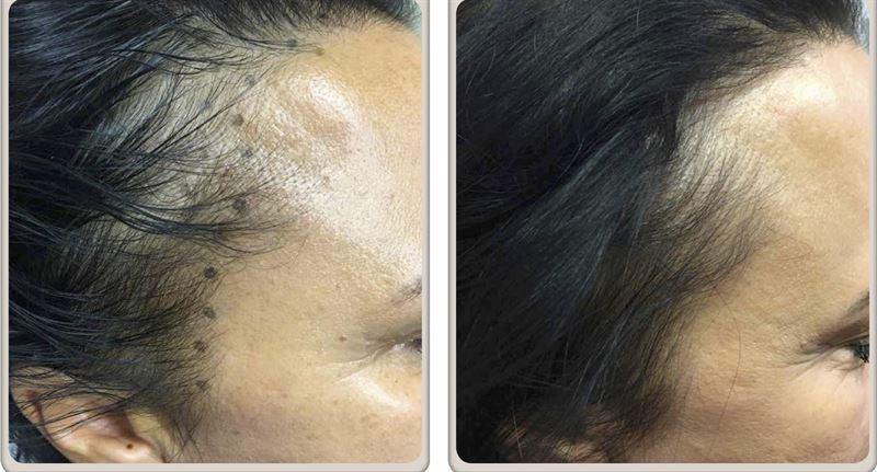 prp hår resultat