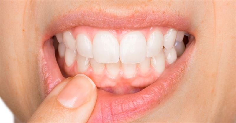 Healthy gums – something to celebrate!