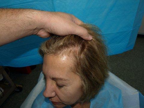 börjar tappa hår