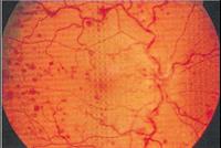 blodpropp i ögat symptom